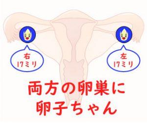 両方の卵巣から排卵