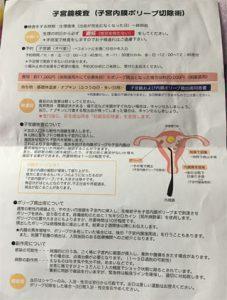 子宮内膜ポリープ